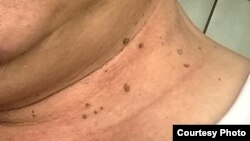 Hỏi đáp Y học: Thịt dư da (Skin tags)