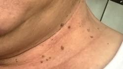 Skin စကားလံုးဆိုင္ရာ အီဒီယံအသံုးအႏႈန္းမ်ား