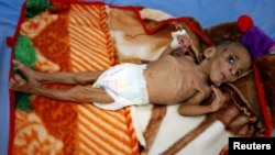 Fatima Abdullah Hassan, 1 tahun, yang menderita gizi buruk, tergeletak di tempat tidur di sebuah pusat perawatan malnutrisi di kota pelabuhan Laut Merah, Hodeida, di Yaman.
