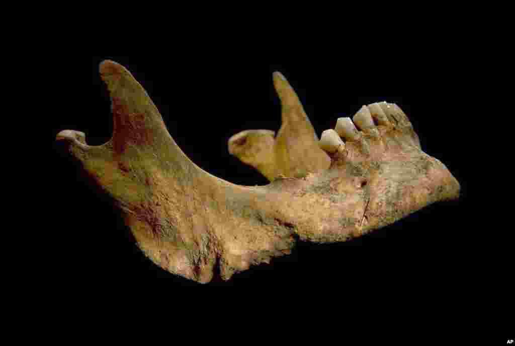 Foto tulang kaki Raja Inggris Richard III yang ditemukan para peneliti University of Leicester di Leicester, Inggris.