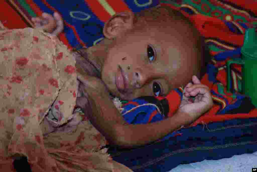 A severely malnourished child awaits treatment at Hilaweyn Health Center. VOA - P. Heinlein