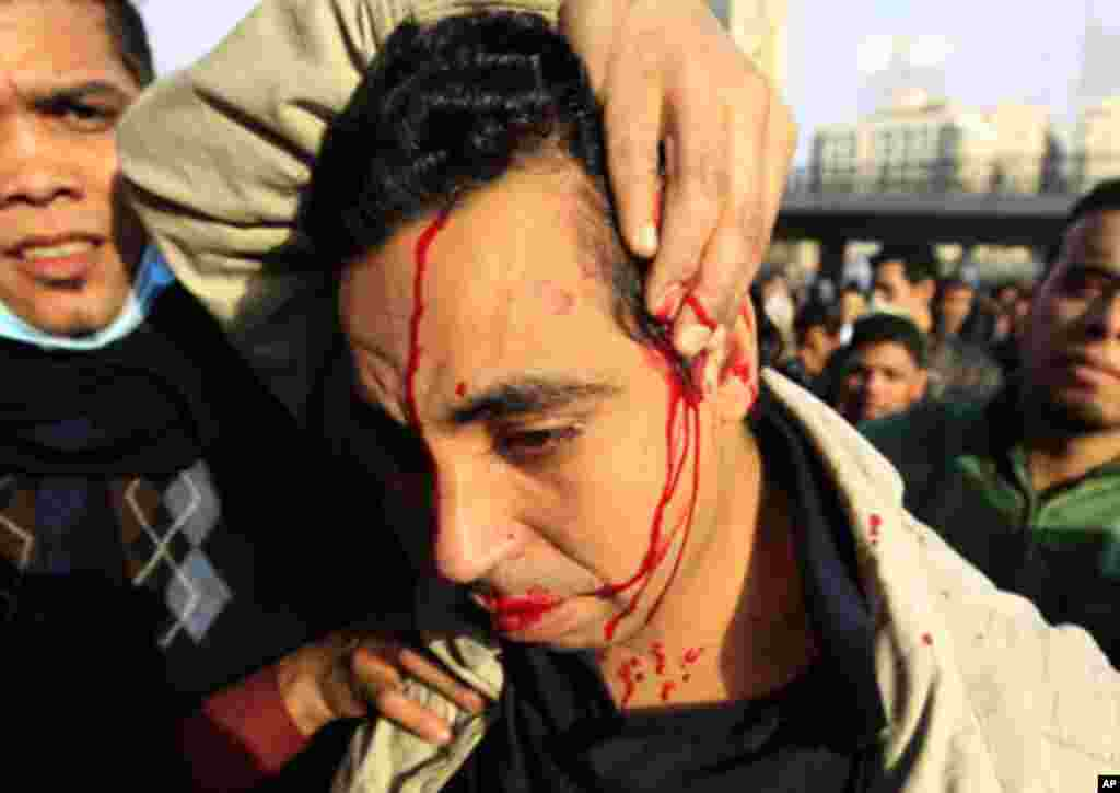 An injured protester bleeds during a demonstration in Cairo January 28, 2011. Police and demonstrators fought running battles on the streets of Cairo on Friday in a fourth day of unprecedented protests by tens of thousands of Egyptians demanding an end to