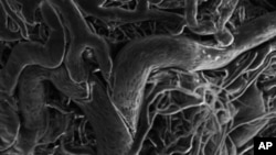 Out-of-control blood vessels associated with retinopathy as imaged by a scanning electron microscope.