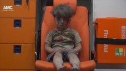 ဆီးရီးယား ဒဏ္ရာရကေလးငယ္႐ုပ္ပံု ကမာၻတ၀န္း ျပန္႔ႏွံ႔