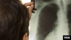CT snimanje - dobra vijest u liječenju raka pluća