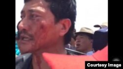 Police Attack Tibetan Small-Business Owners Near Sacred Lake
