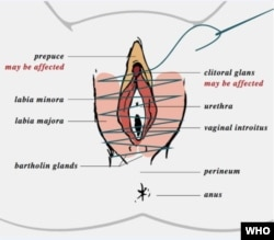 A WHO clinical handbook explains that, in Type 3 female circumcision, the vaginal opening is narrowed by cutting and stitching together the labia minora or majora – with or without removing the clitoral glans and pupace.