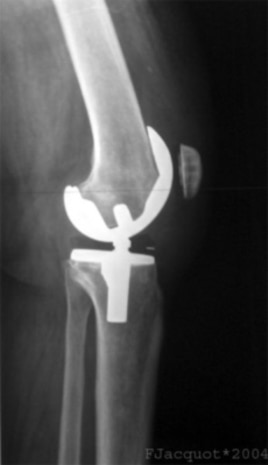 This x-ray shows shows an artificial knee joint, but now scientists are exploring regenerating damaged joints using a patient's own stem cells.
