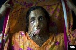 Afganistan'da Başkasıyla Nişanlanan Kadına Kezzaplı Saldırı