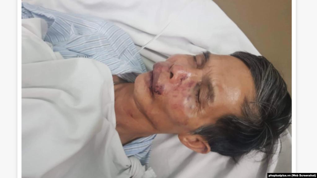 Nhà báo Kiều Đình Liệu (tạp chí Luật sư Việt Nam) bị hành hung vào ngày 26/9/2019.