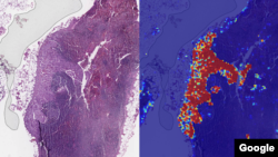The left sample shows a tissue slide containing lymph nodes. The right samples shows results from Google's AI-based Lymph Node Assistant analysis.