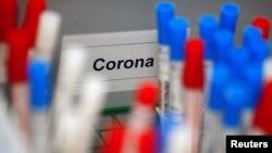 资料照:德国科隆一家医学实验室的冠状病毒检测试剂。(2020年3月24日)