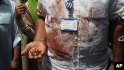 په ۲۰۱۵ کال می میاشت کې هم په کراچۍ ښار کې په یوبس موټر حمله وشوه او لسګونه کسان مړه شوو