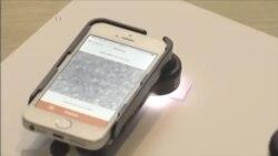 智能手机成为诊断疟疾新工具