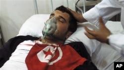 這名受傷的突尼斯示威者在醫院接受治療