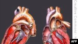 Thiết bị trợ tim cứu mạng