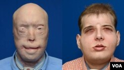 A firefighter gets new face in the most extensive face transplant in history. (VOA FILE PHOTO)