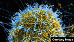 Ebola virus (NAIAD courtesy photo)
