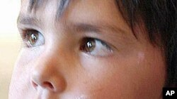 Ansar Deldar, 4, shows signs of leishmaniasis, a common disease among children in Afghanistan.