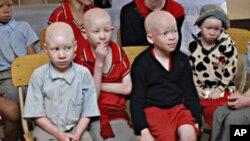 Children with albinism sit at the Golden Valley English Medium School, a school sponsored by Under the Same Sun (UTSS), in Geita, Tanzania.