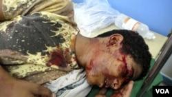 Salah seorang demonstran yang mengalami luka-luka di kepalanya dalam unjuk rasa di Taez (4/4).