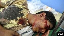 Seorang demonstran yang terluka akibat bentrokan di Taiz, Senin (4/4), dirawat di rumah sakit darurat.