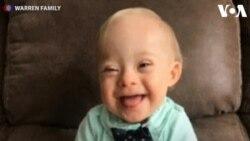 Lucas Warren, Bayi dengan Down Syndrome Duta Gerber