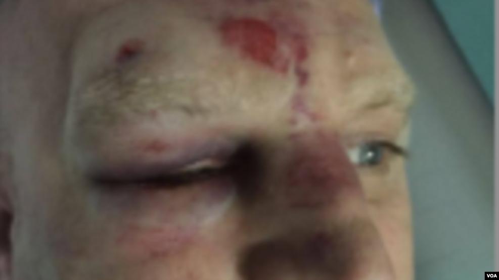 Tiranë: Dhunohet gazetari Ilnica, policia ndaloi Voglin