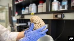 Northwestern Üniversitesi'ndeki bir laboratuvarda bir araştırmacı elindeki insan beynini inceliyor