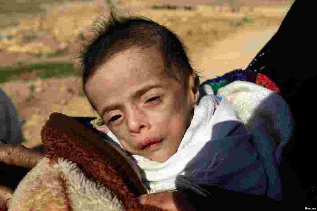 Batoul Bashir Ahmad, a 5-month-old child suffering from dehydration, is carried by his mother, an Iraqi displaced woman who fled her home during a battle between Iraqi forces and Islamic State militants, in Mosul.