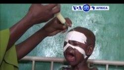 Manchetes Africanas 11 Abril 2107: ONU com dificuldades para ajudar Africa