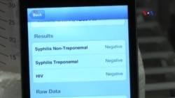 Smartfonlar HİV virusuna diaqnoz qoya biləcək