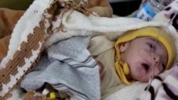 Food Aid Arrives in Yemen's Ports