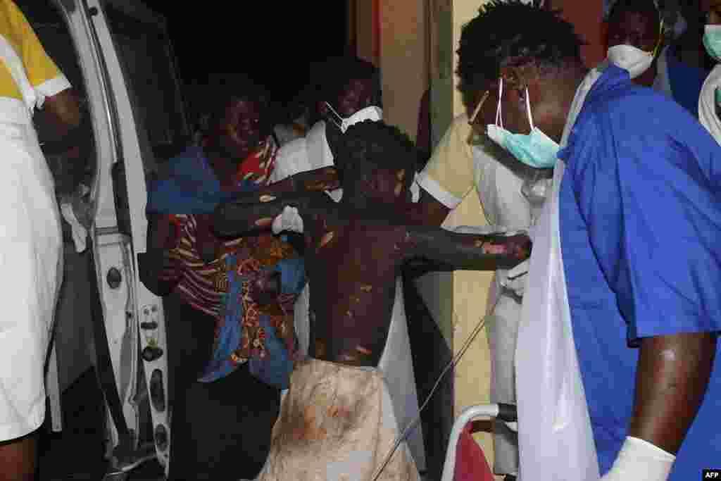 Un enfant gravement brûlé arrive à l'hôpital provincial de Tete, au Mozambique, 17 novembre 2016.