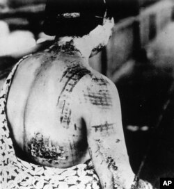 A Japanese victim of the nuclear attack on Hiroshima is treated at a U.S. army hospital in Hiroshima in Sept. 1945.