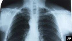 Τρισδιάστατη αξονική τομογραφία κατά του καρκίνου των πνευμόνων