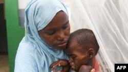 Một bé trai Somalia bị suy dinh dưỡng trầm trọng tại bệnh viện Banadir ở phía nam Mogadishu