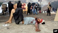 Seorang demonstran yang terluka tergeletak di jalanan di tengah sweeping oleh tentara Mesir di Lapangan Nahda, Kairo (14/8).