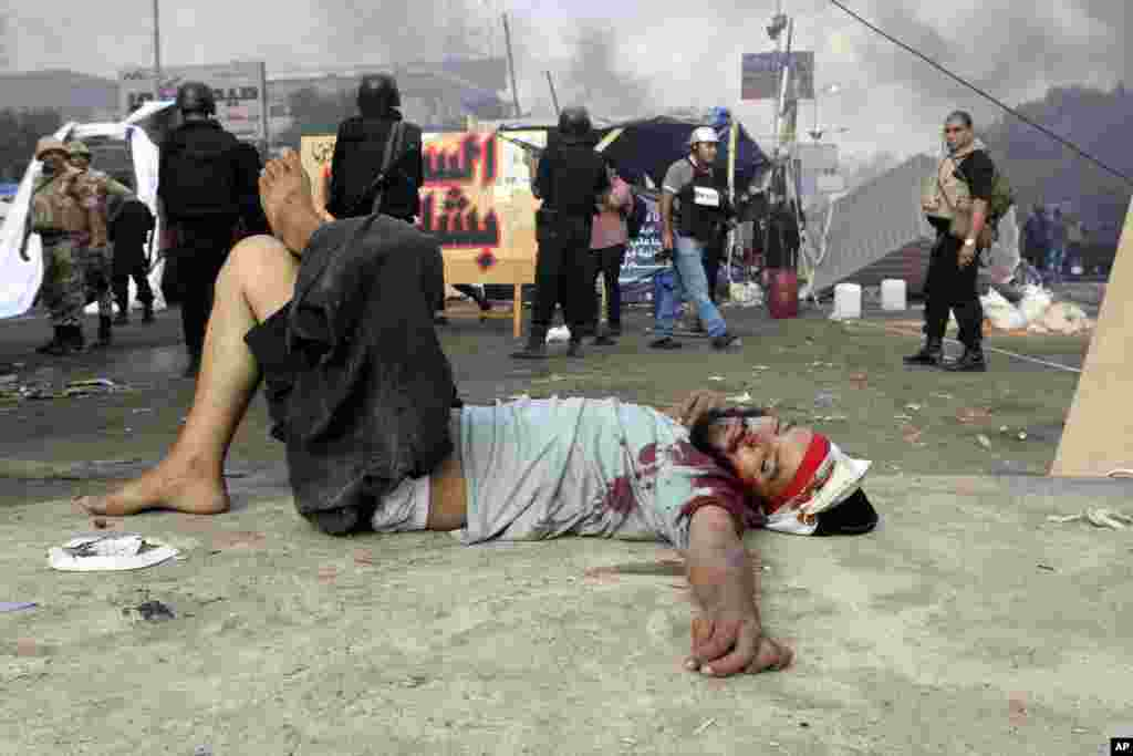 A wounded protester lies on the ground as Egyptian security forces clear the smaller of the two sit-ins by supporters of ousted Islamist President Mohammed Morsi, near the Cairo University campus in Giza, Cairo, Egypt, Wednesday, Aug. 14, 2013. Egyptian s