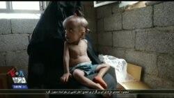 یمن بعد از تلفات انسانی حال با بحران کمبود غذا و گرسنگی مواجه است