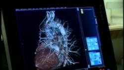 Angioplastik stentləri