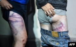 People detained during recent rallies of opposition supporters, who accuse Alexander Lukashenko of falsifying the polls in the presidential election, show their marks from beatings as they leave the Okrestina prison, in Minsk, Aug. 14, 2020.