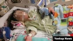 지난해 9월 용혈성요독증후군(HUS) 진단을 최은주 씨의 딸이 심정지로 인해 소아중환자격리실에서 에크모 시술을 받는 모습. (피해자 측 법률대리인 황다연 변호사 제공)