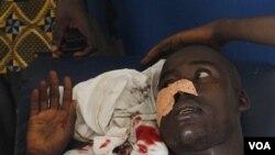 Seorang pria terluka setelah ditembak di muka oleh pasukan pemerintah pro-Laurent Gbagbo, Selasa (15/3). Kekerasan kembali meningkat di negara ini dengan semakin agresifnya kubu Gbagbo, presiden yang menolak turun.