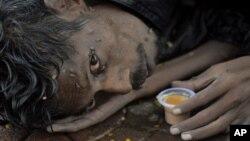 Голодающий. Хайдарабад, Индия.