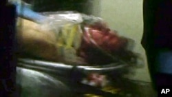 Джохар Царнаев в машине «скорой помощи»
