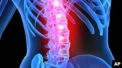 Menurut WHO, sekitar 25 juta orang di seluruh dunia menderita cedera saraf tulang belakang (foto: ilustrasi).