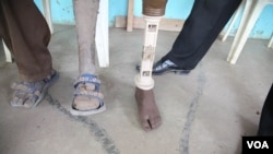 A patient at the International Committee of the Red Cross amputee center took the prosthetic leg of a deceased relative after years of waiting, Rumbek, South Sudan, February 2013. (H. McNeish/VOA)