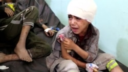 Killing of Schoolchildren Sparks New Outrage Over Airstrikes on Yemen