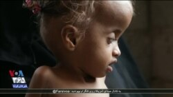 هفتاد هزار یمنی با قحطی مواجهاند